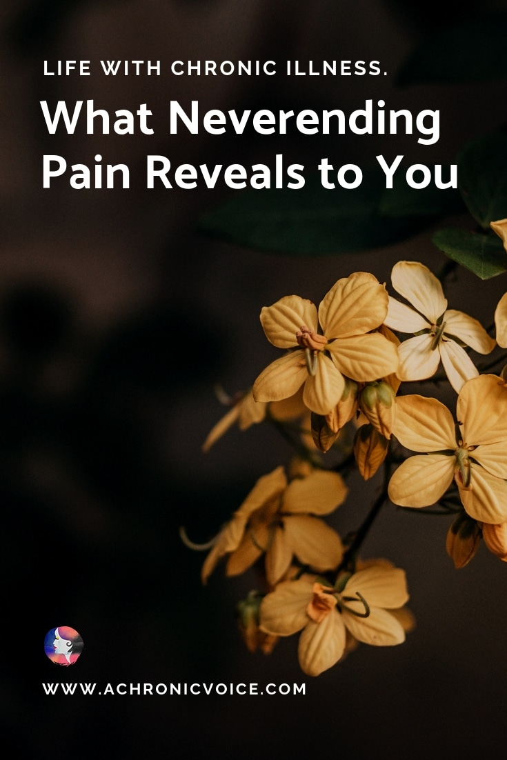 Living with chronic pain forces you to face your mortality on a frequent basis. You come to realise how equally fragile and amazing we are as human beings. Click to read or pin to save for later. ////////// chronic illness & pain / spoonie life / life lessons / mental health / self awareness / mortality #ChronicPain #ChronicIllness #spoonies #LifeLessons #SickLessons