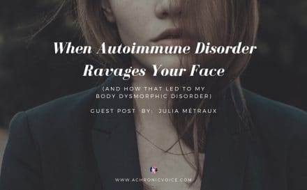 When Autoimmune Disorder Ravages Your Face (and How That Led to My Body Dysmorphic Disorder) - Guest Post by: Julia Métraux | A Chronic Voice