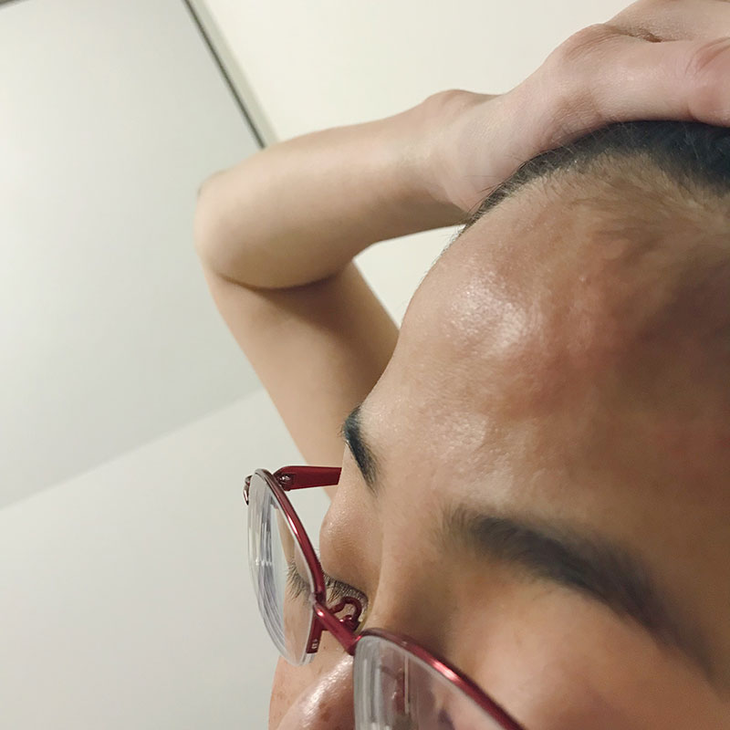 Swollen forehead from Lupus headaches